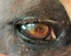 equine fungal keratitis - photo #39